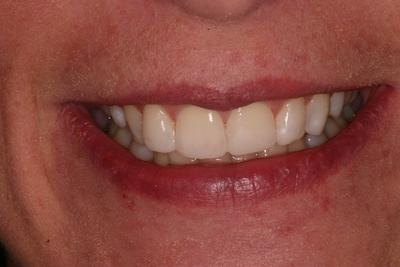 Patient 19: Repairing slightly worn and rotated teeth.