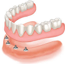 Implant Dentures Can Transform Your Life Grove City Ohio 43123
