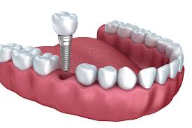 dental implant diagram