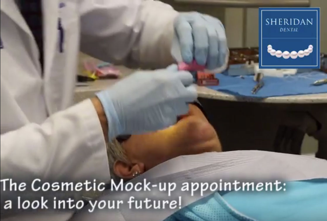 Cosmetic Mock-Up Appointment Grove City Ohio 43123